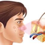 Le CBD peut-il aider à lutter contre l'acné ?