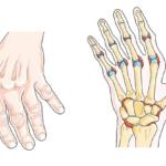 Le CBD peut-il aider à lutter contre l'arthrite ?