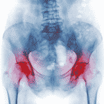 Le CBD peut-il aider à lutter contre l'ostéoporose ?
