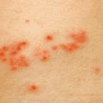 Le CBD peut-il aider à traiter les maladies de la peau ?